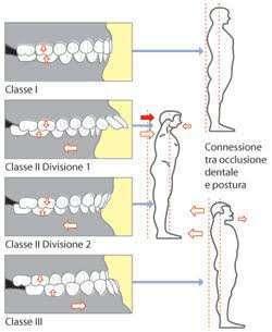 occlusione dentale e postura